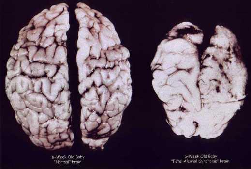 fas-brain
